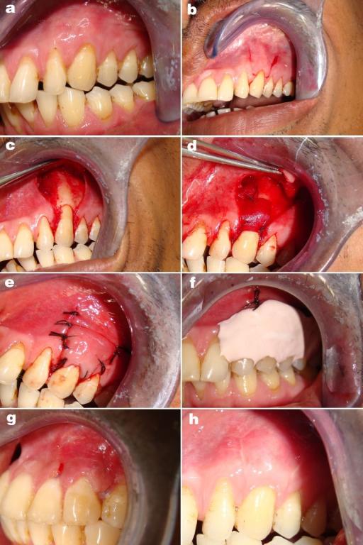 Regeneración ósea guiada por membrana