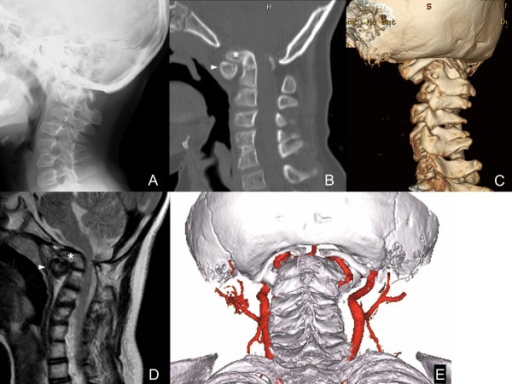 Preoperative imaging of the craniovertebral junction. (A) Lateral radiography shows malalignment of the craniovertebral junction. (B) Midsagittal reconstruction from computed tomography shows an anteriorly tilted odontoid process of C2 and migration of a hypoplastic C1 posterior arch into the foramen magnum. (C) Posterolateral view of three-dimensional computed tomography shows migration of the C1 posterior arch into the foramen magnum and rachischisis (spina bifida) of the C1 posterior arch. (D) Midsagittal T2-weighted magnetic resonance imaging shows compression of the spinal cord by the basilar invagination and an anteriorly shifted C1 posterior arch. (E) Posteroinferior view of three-dimensional computed tomography angiography shows anomalous courses of bilateral vertebral arteries (persistent first intersegmental artery), which were located between the C1 posterior arch and the pars interarticularis of C2. Asterisks, odontoid process; arrowheads, C1 anterior arch.