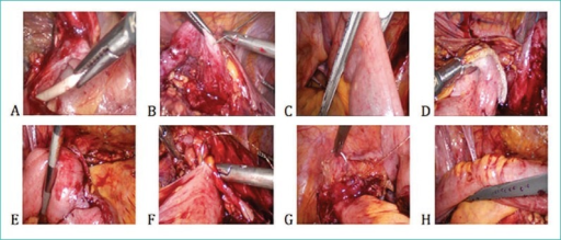 A. Ureter identification and removal of Double J stent; B. Renal pelvis mobilization and suspension; C. Bowel transection using Endo_GIA stapler; D. Transected bowel temporarily fixed to renal pelvis; E. End–to–end anastomosis after distal transection; F – Pyeloileal anasotomosis; G – Ileovesical anastomosis; H – completed isoperistaltic ileal ureter.