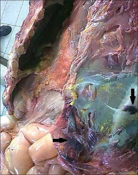 Intramuscular hemorrhage in the chest muscle