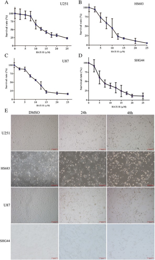 Growth inhibitory effects of HATi II in glioma cell lines. (A-D) Cell viability assay. Glioma cells cultured in 96-well plates were treated with different concentrations of HATi II or DMSO for 48 h, and cell viability was determined using the CCK-8 assay. Cell proliferation was calculated as a percentage of the DMSO-treated control cells; IC50 values were derived by plotting the proliferation values on a logarithmic curve. The experiments were repeated three times. (E) Phase-contrast microscopy of U251, HS683, U87 and SHG44 cells treated with HATi II for 24 or 48 h (×100).