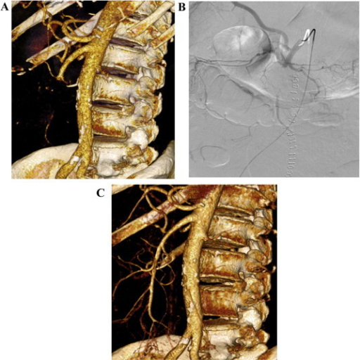 (A) Three-dimensional volume rendering of arterial phase computed tomography (CT) angiography showing a segmental thromboembolic occlusion of the SMA immediately distal to the right colic branch. (B) Selective catheterisation and angiography of the SMA occlusion. (C) Successful revascularisation of the SMA following catheter-directed thrombolysis, angioplasty and thromboaspiration.