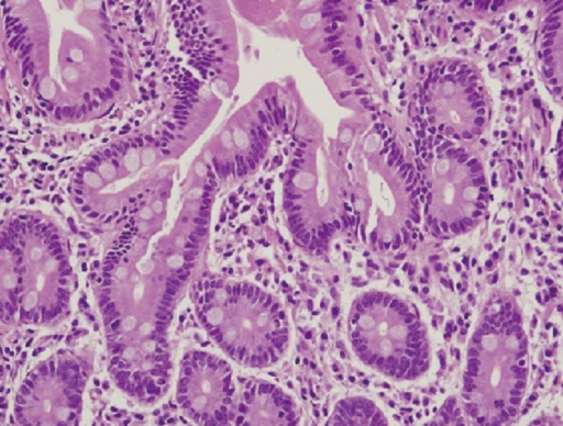 Pathological findings from the duodenal endoscopic biopsy showed no significant villous atrophy, but a partial increase in intraepithelial lymphocytes was observed (H&E stain, ×400).