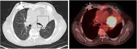 "Planning-PET-CT imaging by use of ""fludeoxyglucose F 18"" tracer. Hypermetabolic activity of bronchial carcinoma on the left main bronchus with restriction of those."