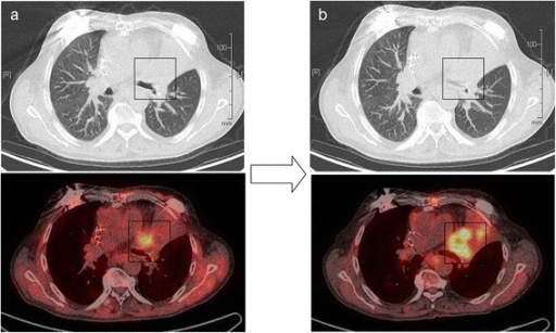 Radiological follow-up staging after radiotherapy: a) significant reduction of tumor size and FDG-uptake in three months after radiotherapy; b) progressive disease in six months with the intrabronchial tumor propagation and increased metabolic activity.