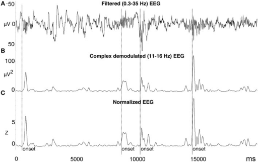 Automated spindle detection method processing steps. (A) Step 1, the EEG was filtered using a high pass 0.3 Hz filter, low pass 35 Hz filter, and bad data and artifact was identified. (B) Step 2, the EEG was transformed using complex demodulation (CD), producing a new time series of instantaneous magnitude (μV2) in the frequency band of interest (e.g., 11–16 Hz). (C) Step 3, the CD time series was normalized to Z-scores calculated from a 60-s sliding window about each data point. Spindle onsets were detected when Z > 2.33 (i.e., 99th percentile). To more accurately measure the entire length of the spindle, the onset was adjusted to be the first point at which Z = 0.5 prior to the amplitude threshold Z, and the offset as the first point at which Z = 0.5 after the amplitude threshold Z. Figure reproduced from Fogel et al. (2014b).