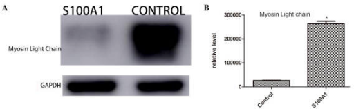 (A) Western blot analysis of the myosin light chain 3 expression in the left ventricular tissue from the Ad-S100A1-EGFP and control groups. (B) Relative levels of myosin light chain 3 measured via western blotting. *P<0.01 vs. control. S100A1, S100 calcium binding protein A1; GAPDH, glyceraldehyde 3-phosphate dehydrogenase.