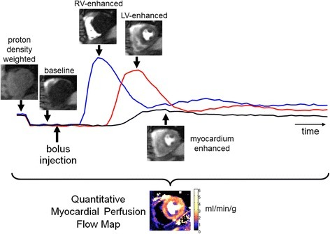 Illustration of first-pass contrast enhanced myocardial perfusion imaging showing different phases of image contrast during passage of the bolus for a subject with single vessel disease. Proton density weighted images are acquired at the start of acquisition prior to administering the contrast agent bolus. The complete time series of images are automatically processed to estimate pixel-wise myocardial blood flow maps which show regions of low flow in different color than normal flow, thereby reducing the time required to analyze the raw images. The time intensity signals represent the intensities of RV blood pool (blue), LV blood pool (red), and myocardium (black) regions. Note that flow map values are only valid for myocardium tissue and not blood pool regions or in non-tissue
