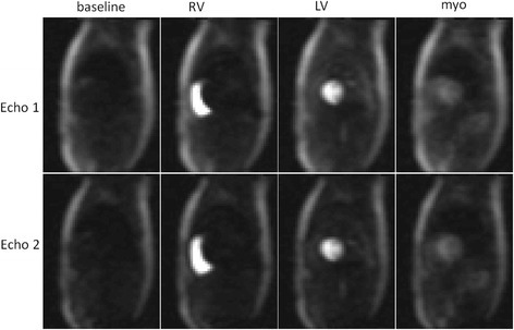 Example AIF images for stress study showing echo 1 and 2 images at baseline and peak enhancement of right ventricle (RV), left ventricle (LV) and myocardium (myo)