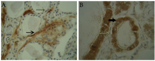 Immunoreactions of hepatocyte growth factor (HGF) in cases of benign colloid goitre and papillary thyroid carcinoma (PTC). (A) Unstained HGF follicular thyroid cells (grey arrow) and HGF stain located on membrane and cytoplasm of stromal cells (black arrow) surrounding thyrocytes, respectively (original magnification ×400). (B) HGF cytoplasmic and membranous immunostaining in PTC follicular cells (black arrow) and unstained HGF stromal cells (grey arrow), respectively (original magnification ×400).