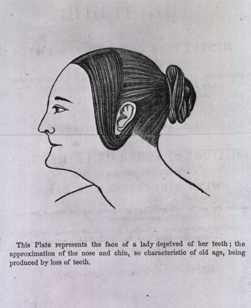 <p>Flap illustration showing profile of woman before use of dentures.</p>