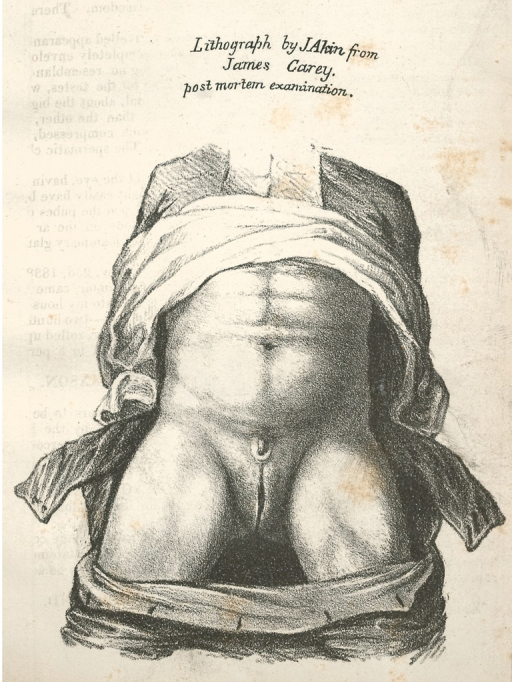 <p>James Akins made this illustration at Carey's postmortem examination in Philadelphia on June 5, 1838. It bears Akin's attestation that attending physicians approved his anatomical representation of Carey's ambiguous genitals. Facts, after p. 8.</p>