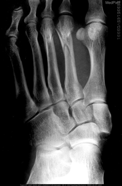 An AP x-ray of the left foot showed fractures of the distal second and third metatarsals.  The distal medial cuneiform had a fracture on the medial aspect.  The base of the first metatarsal was displaced medially and the base of the second metatarsal was displaced laterally.