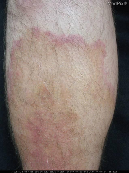 Erythematous, indurated, waxy confluent plaques over bilateral lower extremities with hypererythematous borders. Bullae were present overlying these waxy plaques on the lateral aspect of the feet. Scattered, round, erythematous papules and plaques over the trunk and upper extremities