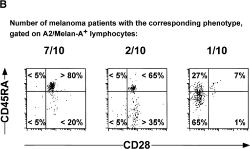 Phenotypic analysis of ex vivo circulating A2/Melan-A+ and A2/Flu-MA+ cells in melanoma patients and healthy donors. CD8+ lymphocyte populations were highly purified (>98%) from PBMCs, as illustrated in Fig. 1. The lymphocyte preparations were then stained with A2/Melan-A, or A2/Flu-MA tetramers together with anti-CD45RACYC and either anti-CD45ROFITC or anti-CD28FITC mAbs, and immediately analyzed by flow cytometry. (A) Pattern of expression of CD45RA/RO (top) or CD45RA/CD28 (bottom) in total circulating CD8+ T cells (left) from healthy donors (shown is HD 329). They were CD28+CD45RAhi/RO− in A2/Melan-A+ gated cells (middle) but CD28+CD45RAlo/RO+ in A2/Flu-MA+ gated cells (right). (B) Circulating A2/Melan-A+CD8+ T cells detected in the majority (7 out of 10) of melanoma patients presented a CD28+CD45RAhi/RO− phenotype (left). In contrast, tetramer+ cells from 2 out of 10 patients displayed variable proportions of CD45RAhi/RO− and CD45RAlo/RO+tetramer+ cells (middle) and a CD28−CD45RAint phenotype for 1 out of 10 patients (right). (C) Summary of phenotyping data obtained for melanoma patients and healthy donors. Frequencies of CD45RAlo cells detected in gated A2/Melan-A+ and A2/Flu-MA+CD8+ T cells were calculated with CellQuest™ software.