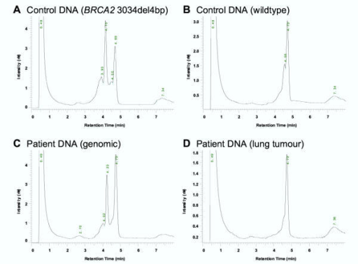 DHPLC elution profiles of 463 base pair PCR fragments of BRCA2 exon 11. A: Heteroduplex profile with two peaks from control DNA that was found to be heterozygous for the common exon 11 BRCA2 mutation 3034del4bp. B: Homoduplex profile (DHPLC) in amplified wild-type DNA. C: DHPLC analysis of amplified genomic DNA of our patient showing a heteroduplex profile similar to the profile of the mutant control DNA sample. D: DHPLC elution profile of amplified lung tumour DNA showing only one peak indicating LOH, either of the wild-type or the mutant allele.