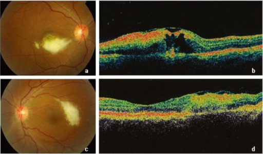 Fundus photographs and optical coherence tomography (OCT) at presentation in the patient's right (a, b) and left (c, d) eyes. Her visual acuity was 20/60 in the right eye and 20/25 in the left eye.