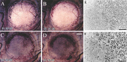 Typical finding of growth inhibition caused by AC7700 in an SLC microtumour developing in a transparent chamber. (A) before administration of 10 mg kg−1 AC7700 administration; (B) 3.5 h after administration of AC7700; (C) 25 h later; (D) 48 h later; (E) histology 48 h later. Tumour blood flow completely stopped at 1 h after a single i.v. administration of AC7700. The whole region of the tumour, with a diameter of 2.5 mm, became necrotic. Tumours stopped growing completely during the 48-h observation period. Histological study (E and F, H&E stained) certified the tumour (shown on the right side) as necrotic. Original magnification: A–D, ×20; E, ×200; F, ×400. Bars: A–D, 500 μm; E, 100 μm; F, 50 μm.