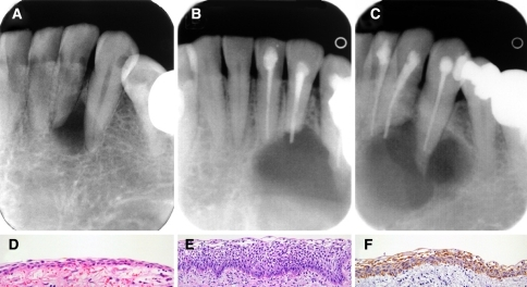 thesis on ameloblastoma Ameloblastoma symptoms, histology, radiology and diagnosis, surgery, treatment several histologic types of ameloblastoma are described in the literature including plexiform, follicular, basal cell.
