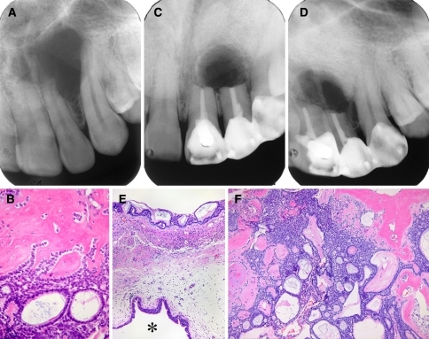 Adenoid ameloblastoma with dentinoid. a Periapical radiograph taken in 1988, b primary tumor (1988) showing adenoid spaces and dentinoid, c periapical radiograph (2nd recurrence) taken in 1995, d periapical radiograph (3rd recurrence) taken in 1998, e fourth recurrent (1999) tumor. Asterisk (*) showing sinus cavity, f typical feature of adenoid ameloblastoma with dentinoid (Hematoxylin–Eosin—b ×400, e and f ×100)
