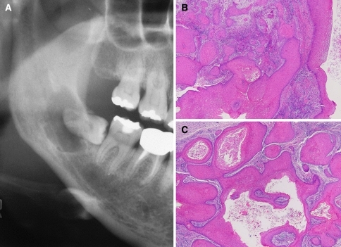 Cystic squamous odontogenic tumor. a Panoramic radiograph, b and c solid-cystic proliferation of mature squamous epithelium (Hematoxylin–Eosin, ×40)