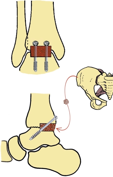 Technique of revision ankle arthrodesis with posterior inlay bone grafting.