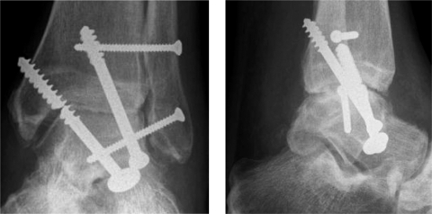 Patient 6. A. Pseudoarthrosis with screw breakage 4 months after the first operation. B. Fusion 11 weeks after removal of broken screws, refixation with posterior screws, and posterior inlay bone grafting.