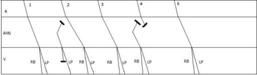 ladder diagram to illustrate beats between pauses the open i ekg placement diagram  ladder diagram ekg