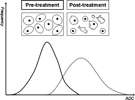 Schematic diagram showing ADC changes with anticancer treatment. Graphs show frequency plots of ADC values in tumours before (solid black line) and after (dotted black line) therapy. Inserts depict a cluster of tumour cells, which demonstrate cellular lysis and apoptosis following treatment, thus increasing the mobility of water protons in that microenvironment. Note that successful therapy results in a shift of the ADC frequency plot (dotted line) towards the right as a result of increasing ADC values.