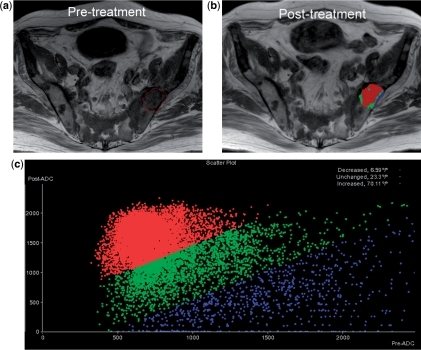 Parametric response map. A 72-year-old man with metastatic prostate cancer. (a) Pre-treatment T1-weighted image of the pelvis showing extensive metastatic bone disease. A region of interest (in red) is drawn encompassing a metastasis in the left ilium. (b) Post-treatment T1-weighted image. Colours displayed within region of interest indicate voxels that show increase (red), decrease (blue) or no change (green) in ADC values relative to threshold determined by pre-treatment standard deviation of ADC values. (c) Scatter plot of ADC values on a voxel-by-voxel basis before and after treatment shows a large percentage of voxels showing increase in ADC values (in red) indicating treatment effects within tumour volume. (Maps generated using Oncotreat software, Siemens Medical system, Erlangen, Germany).