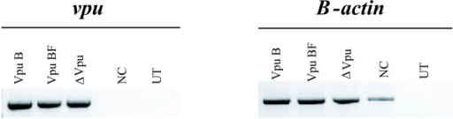 Vpu expression was assessed by specific RT-PCR of vpu mRNA after transfection of HeLa cells. Both untransfected (UT) cells and cells transfected with empty vector (NC) were used as control (right panel). Amplification of β-actin mRNA was also evaluated as an internal control (left panel).
