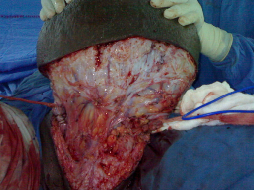 Radical resection of tumour.