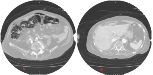 CT. Abdominal CT reveals diffuse intramural gas from the ascending colon to the transverse colon and a large amount of free air in the abdominal cavity without portal venous air or extraluminal fluid collections. This study shows diffuse pneumoperitoneum, which led us to suspect the presence of gastrointestinal perforation. Portal venous gas, which frequently follows severe pneumatosis intestinalis, is also absent.