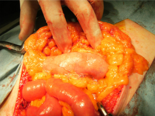Intraoperative findings. Intraoperatively, macroscopic examination of the abdominal cavity shows multiple subserosal bubbles with a diameter of 1-2 mm, mainly around the transverse colon. The appearance of these cystic bubbles is compatible with the characteristics of pneumatosis intestinalis.