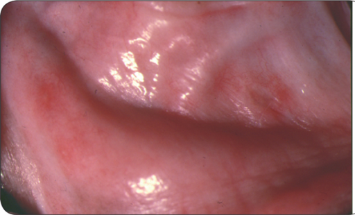 Buccal mucosal petechiation in a clinical case of ehrlichosis in a dog (E. canis).