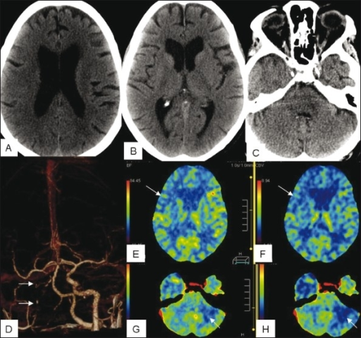 An 83-year-old woman with clinical evidence of right hemispheric ischemia shows no obvious infarct or chronic ischemic changes in the right cerebral hemisphere and in the cerebellum on plain CT scan of the head (A-C). Chronic right internal carotid artery occlusion (arrows) is seen on a CT angiogram image (D). Whole brain CT perfusion (E-H) shows matched decrease in CBF (arrows in E) and CBV (arrows in F) in the right middle cerebral artery distribution. There is also decreased CBF (arrows in G) and CBV (arrows in H) in the contralateral cerebellar hemisphere (arrows), suggestive of crossed cerebellar diaschisis