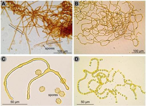 Four different capillitial threads in Trichiida.A. Capillitial threads of Trichia varia: isolated threads sculptured with spiral bands, two very short ones are indicated by a black line. B. Capillitial threads of Arcyria obvelata, forming a network and sculptured with spines. C. Capillitial threads of Oligonema flavidum, short and in this case branched, smooth. Note the reticulate ornamentation of the spores, similar to that of Oligonema schweinitzii and Trichia persimilis. D. Capillitial threads of Cornuvia serpula, branched and ornamented with rings. Scale and colours are approximate. Credit photos: Michel Poulain.