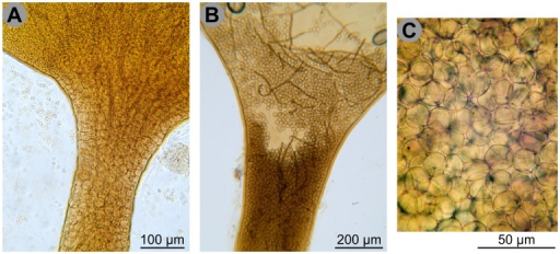 Spore-like bodies.A. Vertical section of the stalk and the base of the sporotheca of Hemitrichia calyculata, showing the stalk filled with spore-like bodies. Those are larger and clearer than the spores in the sporotheca above, without clear demarcation. B. Vertical section of the stalk and the base of the sporotheca of Trichia decipiens, showing the stalk filled with spore-like bodies and few capillitial filaments. C. Greater magnification of the spore-like bodies of Trichia decipiens. Scale and colours are approximate. Credit photos: Michel Poulain.