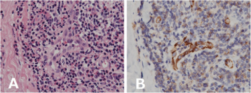 Histopathological examinations of the biopsy. A: Hematoxylin-eosin staining shows plump endothelial cells surrounded by collagenous stroma containing a lymphoid and eosinopilic infiltration; ×600. B: CD31 immunostaining highlights the prominent vascularity; ×600.