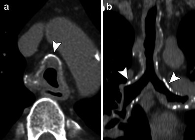A 61 year old man with tracheobronchial amyloidosis ax for Diffuse mural thickening