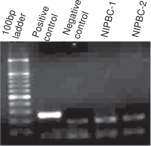 Test for mycoplasma contamination in NIPBC-1 and NIPBC-2 cell lines.