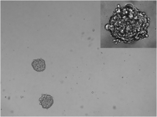 Representative pictures of mammospheres formed by NIPBC1 & NIPBC-2 cell lines. (Magnification- 40x, inset mag- 100x).
