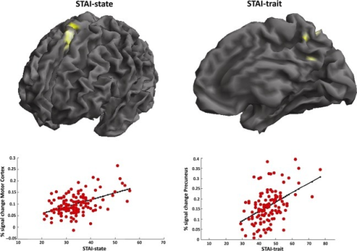 Voxel-based morphometry (VBM) analysis reveals positive correlations (considering an exploratory uncorrected whole -brain statistical threshold of P < 0.001) between gray matter volume of the medial premotor cortex and STAI-state scores (left side), as well as between gray matter volume of the precuneus and STAI-trait scores (right side). Scatterplots with linear fit (solid black line) is also showed in the lower panel.
