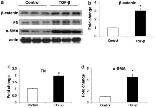 TGF-β induced the expression of β-catenin, FN and α-SMA in human lung fibroblasts. (a) Representative western blot and (b–d) quantification of the expression of (b) β-catenin, (c) FN and (d) α-SMA in human lung fibroblasts with or without TGF-β challenge. Data are expressed as means ± SEM of three independent experiments. *P<0.05 vs. cells without TGF-β challenge.