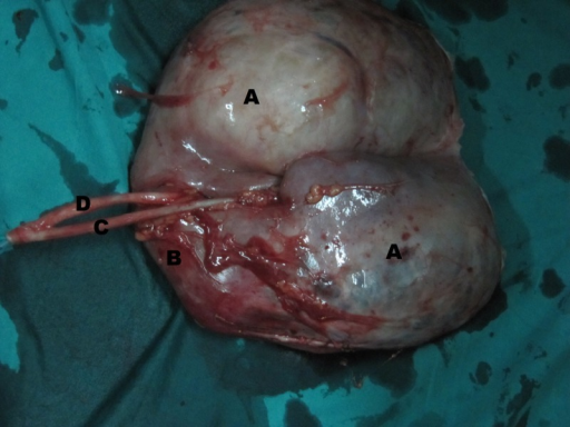Figure 2:Gross cut open specimen (outer suface) showing A). Cystic upper moiety, B).Compressed lower moiety, C). Ureter from upper moiety,and D). Ureter from lower moiety.