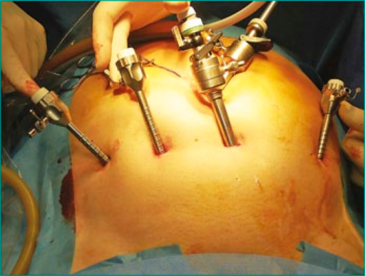 Location of the ports during extraperitoneal laparoscopic adenomectomy.