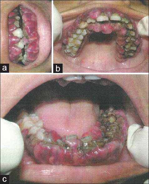 (a) Generalized gingival enlargement involving maxillary and mandibular arch. (b) Boggy, reddish-blue gingiva on the buccal, labial, palatal and lingual aspect of marginal and attached maxillary gingiva. (c) Enlarged gingiva covering the crown surface with a mild ecchymosis in the floor of the mouth