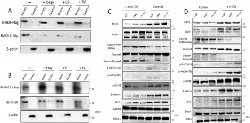 NHE9 inhibited apoptosis by activating Src/Akt/β-catenin and upregulating Bcl-2The binding affinity of NHE9 for RACK1 changed after chemotherapy or radiotherapy A–B. Phosphorylated Akt (Ser473), phosphorylated Src (Tyr416), GSK3β, Bcl-2, and β-catenin were upregulated in NHE9-overexpressing cells when compared with the corresponding control cells C. Phosphorylated Akt (Ser473), phosphorylated Src (Tyr416), GSK3β, Bcl-2, and β-catenin were downregulated in NHE9 knockdown cells when compared with the controls D.
