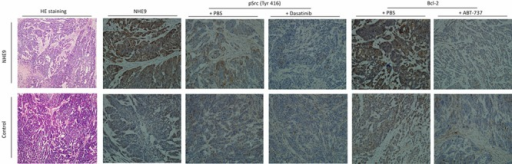 Representative pathological images of the xenograftHE staining of injected tumors confirmed the ESCC phenotype in both Eca109/NHE and Eca109/Con grafts. IHC staining for NHE9 showed that the expression of NHE9 was significantly higher in Eca109/NHE grafts. Phosphorylated Src and Bcl-2 were upregulated in resected Eca109/NHE xenografts, whereas their expression was largely inhibited after ABT-737 and Dasatinib treatments in both Eca109/NHE and Eca109/Con grafts.