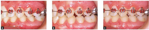 - Treatment side: intraoral photographs at T0 (A),T14 (B) and T56 (C).